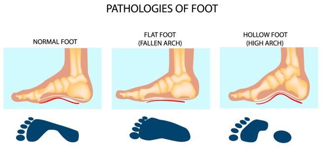 Chọn giày phù hợp với bàn chân